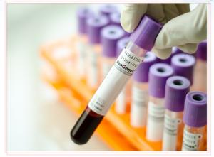 Ống đựng mẫu cfDNA