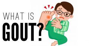 Bệnh gút (gout) và gen ABCG2